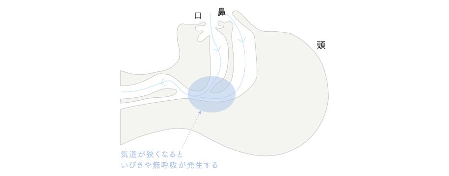 いびきの原因_parts_02