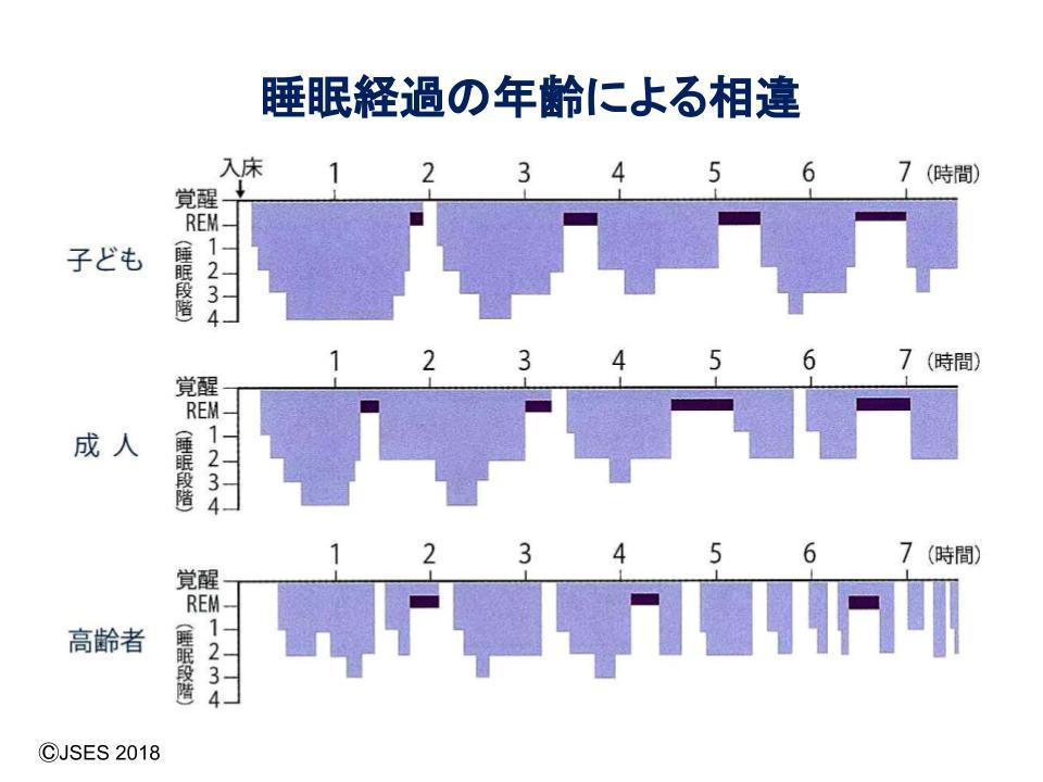 睡眠経過の年齢による相違